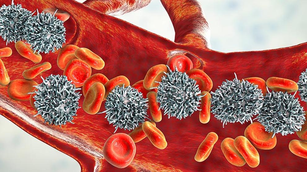 Un régimen puente basado en clofarabina para pacientes con recaída de LLA y enfermedad residual mínima persistente (ERM)