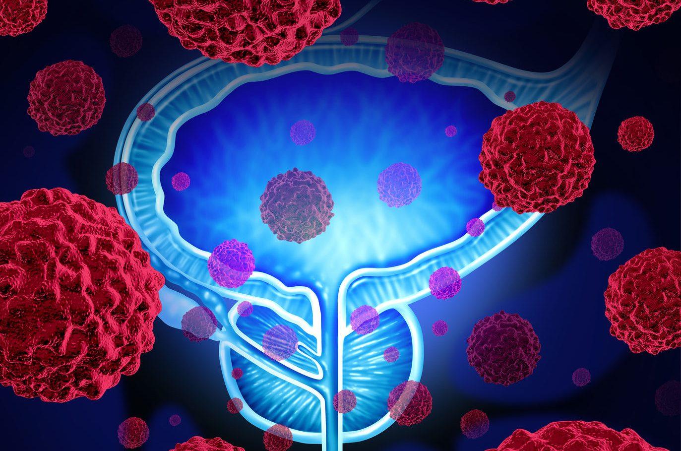 Rol de enzalutamida en el cáncer de próstata metastásico resistente a la castración