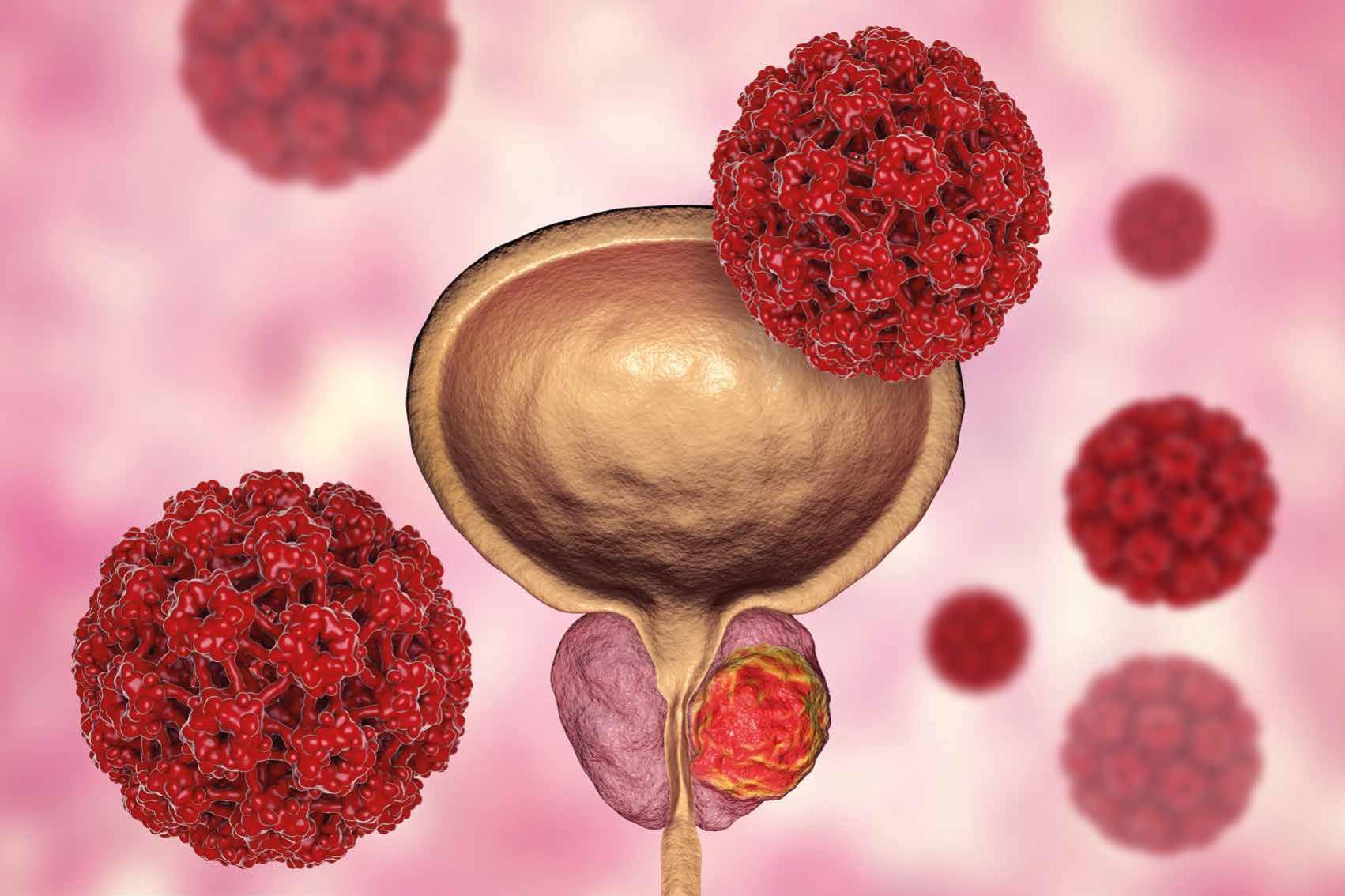 Enzalutamida en pacientes con cáncer de  próstata castración resistente no metastásico (nmCRPC)