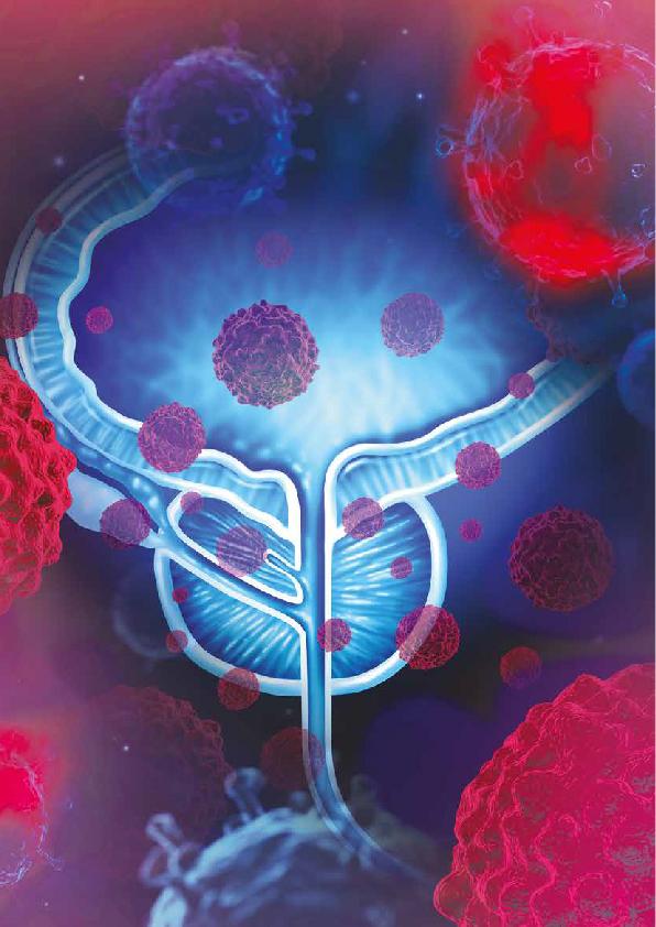 ¿Cuál es la mejor forma de lograr mejores niveles de supresión androgénica en pacientes con cáncer de próstata metastásico?