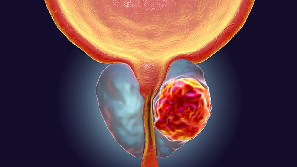 Rol de la enzalutamida en los pacientes con cáncer de próstata metastásico sensible a la castración: resultados del estudio ARCHES