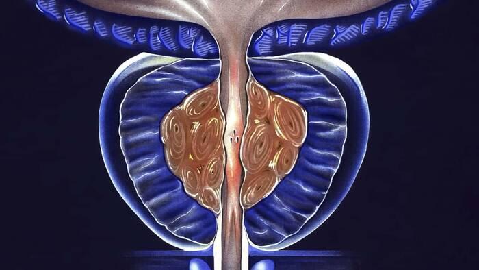Enzalutamida en pacientes con cáncer de próstata resistente a la castración no metastásico: resultados finales del estudio Fase III PROSPER