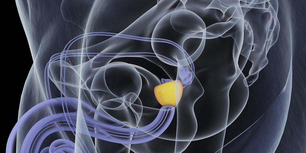 Mejorar la vida de los pacientes con cáncer de próstata avanzado con la intensificación temprana del tratamiento
