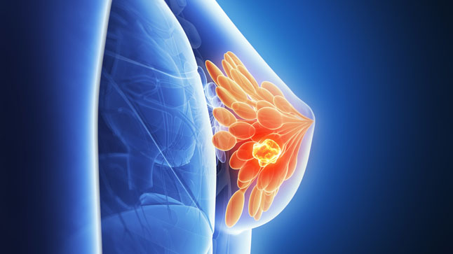 Mayor tasa de respuesta patológica completa con denosumab neoadyuvante en tumores de células gigantes localmente avanzados